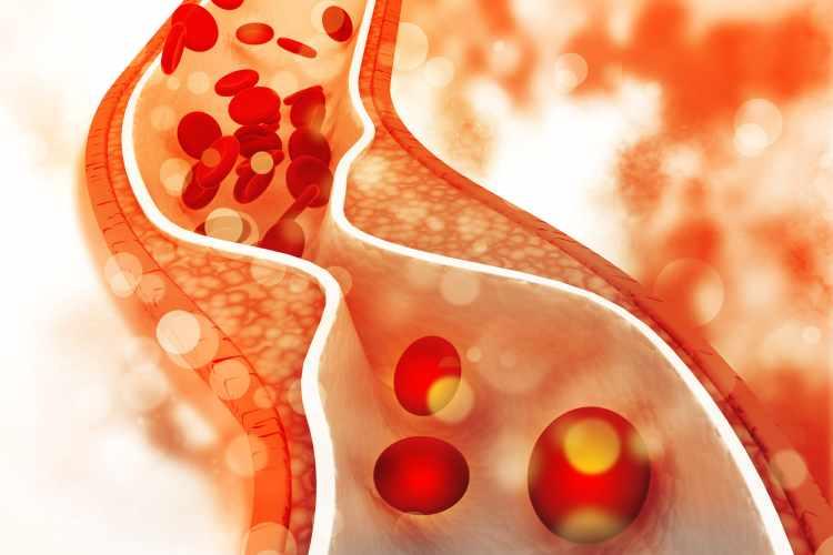 изследване на холестерол