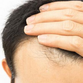 A new potential treatment for baldness