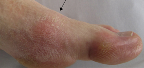 Why gout remains global disease burden