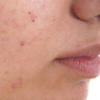Acne can be more distressing than melanoma