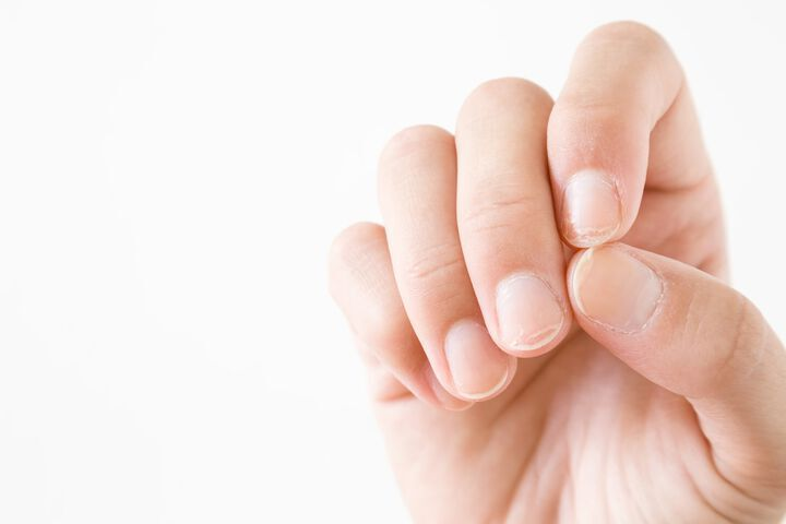 5 tips to improve nail psoriasis at home