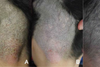 A Case of Localized Scalp Psoriasis Triggered by Microsporum canis Infected Tinea Capitis