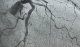 A rare case of double coronary artery fistula from left circumflex artery draining to the left atrium in a rheumatic heart disease patient