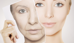 A Tripeptide/hexapeptide anti-aging regimen that targets both collagen and elastin, and improves both physician and subject scoring of facial aesthetics