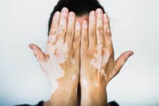 A study of autologous epidermal non-cultured cell suspension in stable vitiligo patients