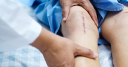 Surgeons not good at predicting benefit from knee operations