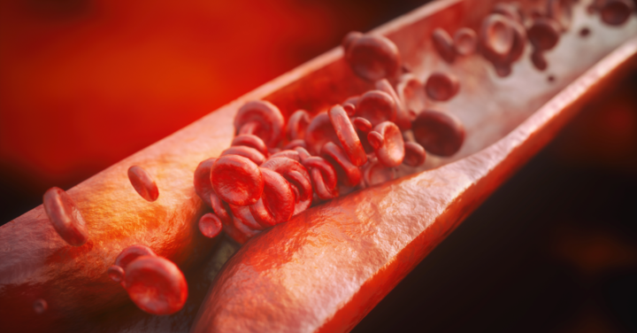 Biomarkers of Atherosclerosis: Is the Evaluation Essential Preoperatively?