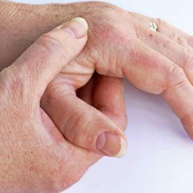 Tofacitinib or Adalimumab versus Placebo for Psoriatic Arthritis