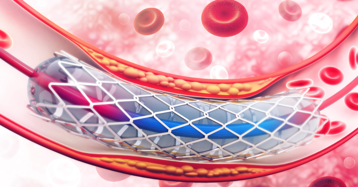 Stents no better than drugs for many heart patients