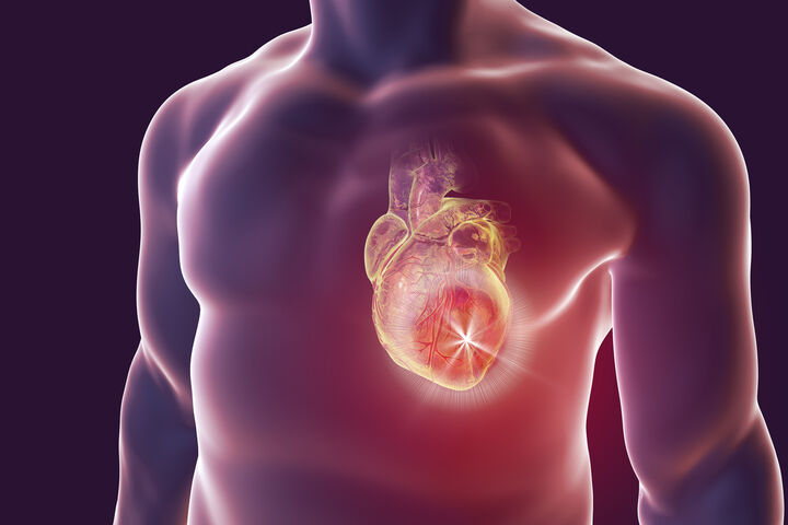 Burnout linked with irregular heartbeat