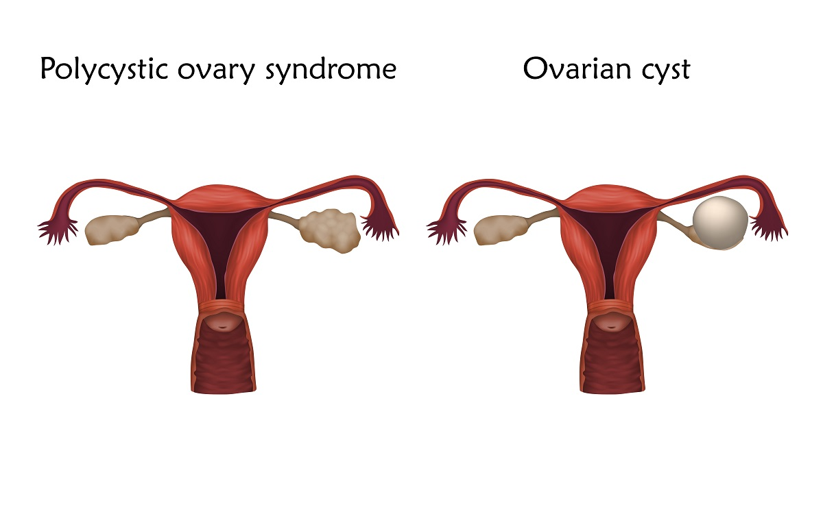 ovary cysts and polycystic ovaries