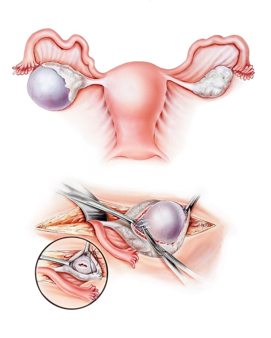 Follicular cyst, functional ovarian cysts, female reproductive system