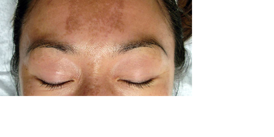 Novel Supplement with Phenolic Compounds for Treatment of Melasma: Double Blind Placebo Controlled Trial Safety and Efficacy Evaluation
