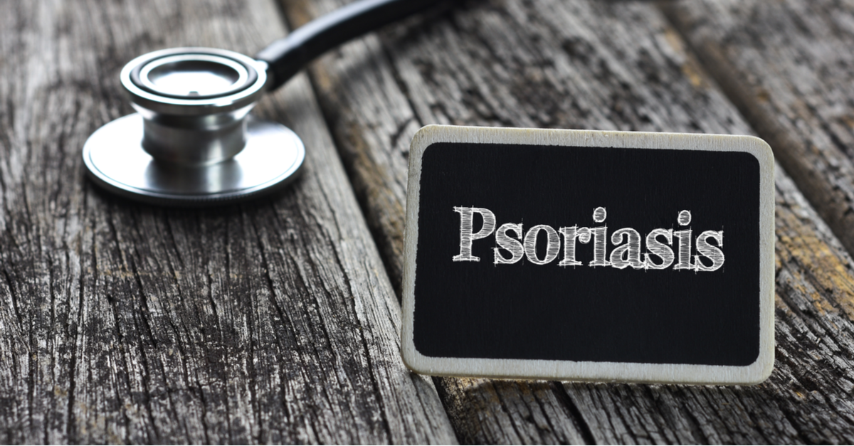 French guidelines on the use of systemic treatments for moderate-to-severe psoriasis in adults