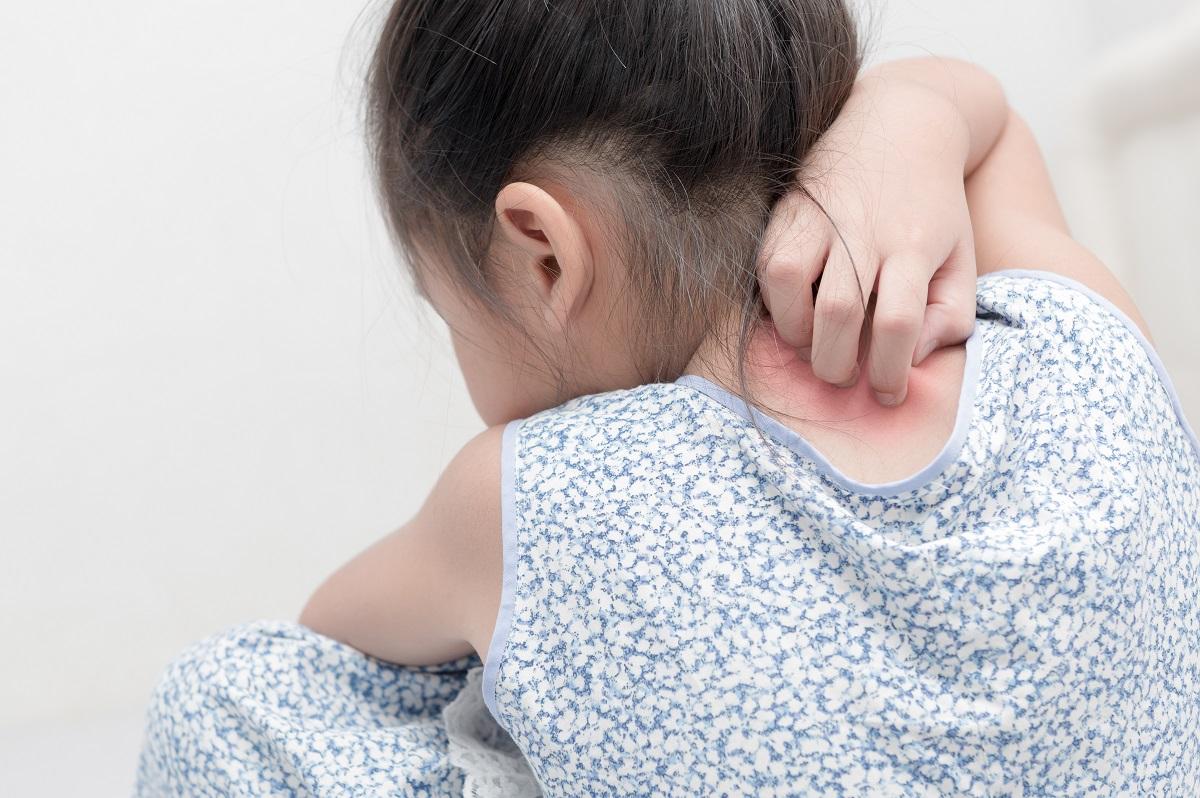 psoriasis  in children, psoriasis factors, causes for psoriasis