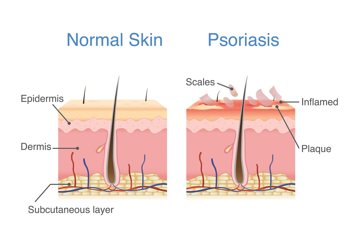 psoriasis formation
