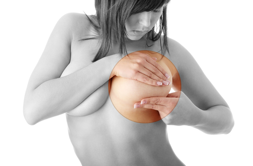 Breast implants linked to cancer taken form the market in EU