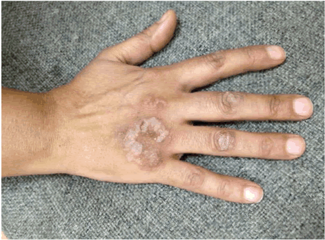 Case report of rare estrogen dermatitis
