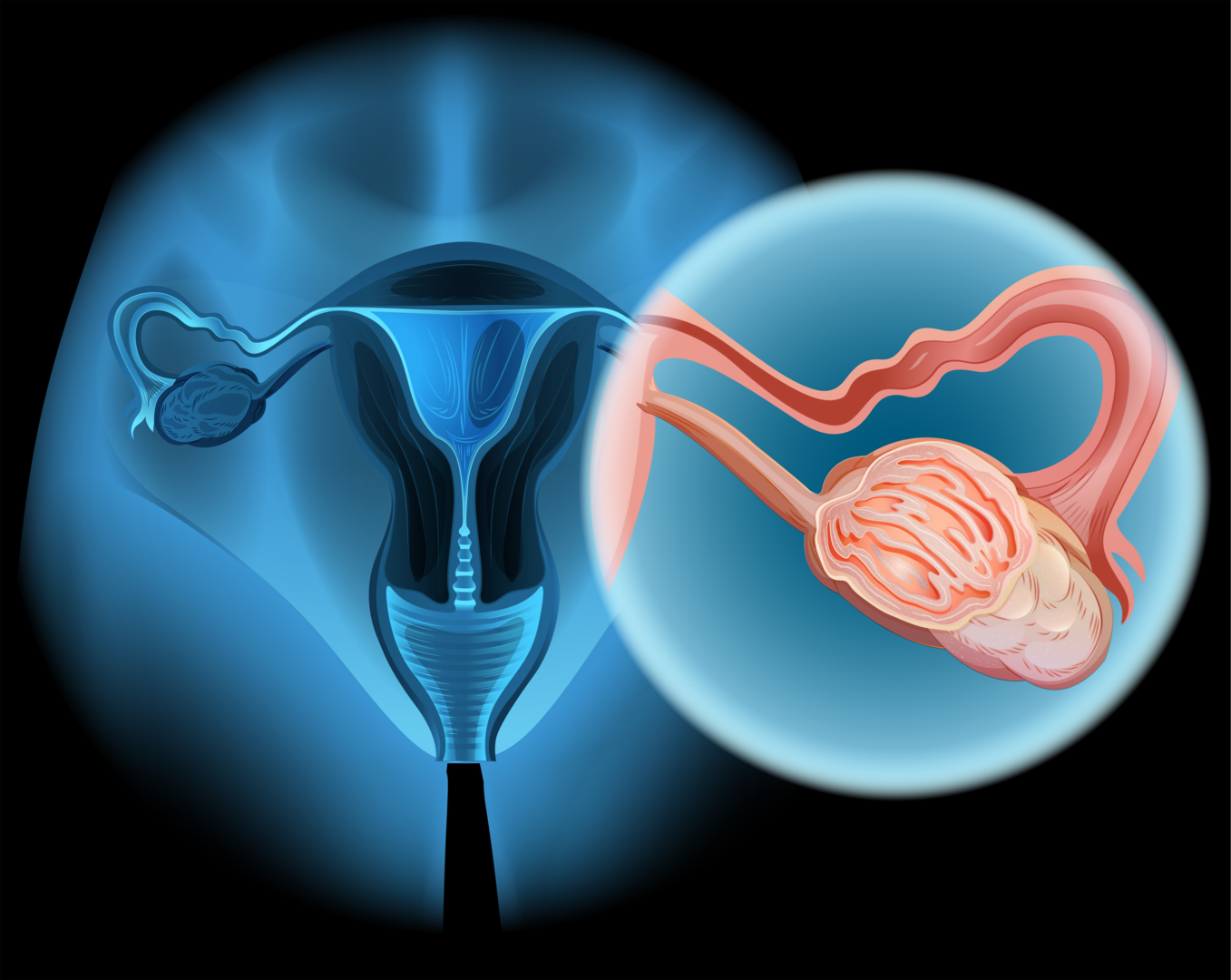 Ovarian cancer: no sure methods of early detection