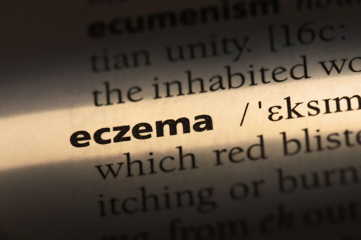 Efficacy and safety of compound glycyrrhizin capsules in patients with localized chronic eczema