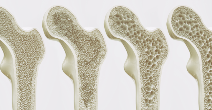 Transient osteoporosis of the talus: A case report