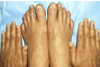 Nail Changes in Chilblains Mimicking Lichen Planus