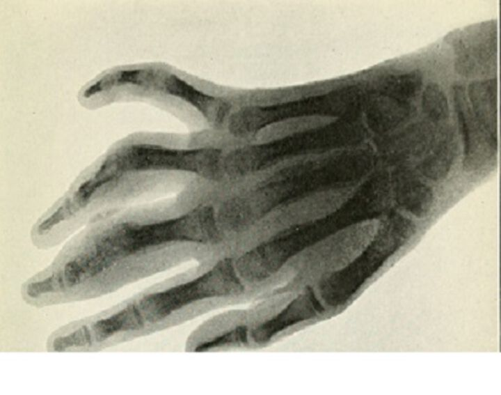 Advantages of MRI of bilateral hands in rheumatoid arthritis